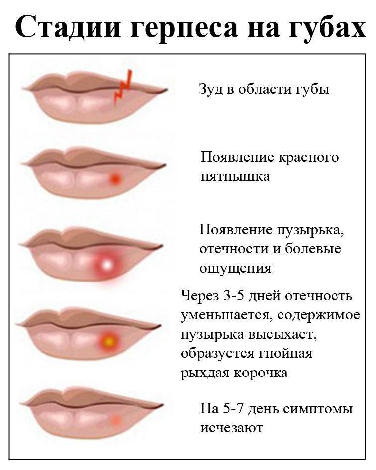 Связаны ли COVID-19 и герпесвирусная инфекция между собой. И почему у больных «ковидом» бывают высыпания на губах